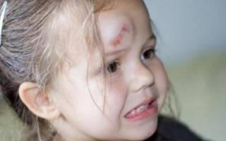 Ребенок ударился головой болит голова. Что делать, если ребенок ударил затылок: на что обратить внимание и какие бывают последствия ушиба головы
