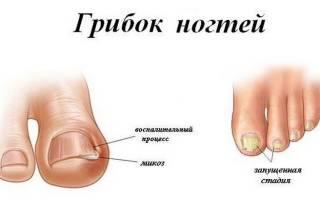 Мицелий ногтевой пластины. В род Trichophyton включают. Симптомы грибковых инфекций