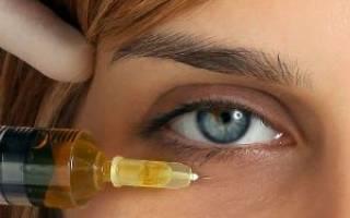 Гиалуроновая кислота для кожи вокруг глаз. Как убирают мешки под глазами с помощью гиалуроновой кислоты