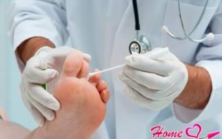 Лечение нитей мицелия на ногтях и коже ног. Нити мицелия — симптомы и диагностика, пути заражения и методы лечения
