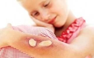 Термические ожоги кожи: вся правда о том, как их лечить. Опасен ли инфракрасный обогреватель для человека? Ожог от обогревателя