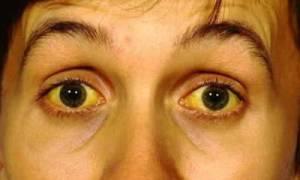 Желто зеленый цвет лица причины. Ты мало ухаживаешь за кожей. Загрязненная окружающая среда