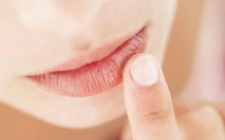 Если треснула губа, что делать и чем мазать. Почему трескаются губы и как быстро справиться с проблемой