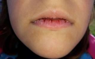 Лучшее средство от обветренных губ. Обветрились губы у ребенка – что делать