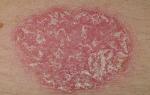 Красное пятнышко на коже шелушится. Диагноз и лечение красных шелушащихся пятен на теле. Существует несколько самых распространенных причин