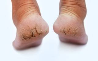 Причины и лечение трещин на пятках. Главные причины почему трескаются пятки и как от этого избавиться навсегда