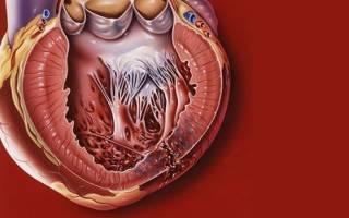 Разрыв: причины, симптомы, диагностика, лечение. Разрыв сердца, миокарда: предпосылки, формы, признаки, помощь, прогноз