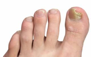 Какими народными средствами можно вылечить грибок ногтей. Грибок ногтей на ногах: чем лечить, самые эффективные средства