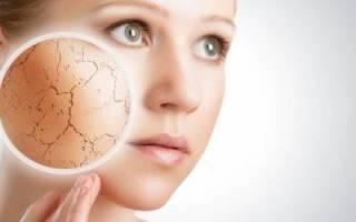 Признаком чего может выступать шелушение кожи — возможные причины и последствия, способы избавления. Что делать, если шелушится кожа