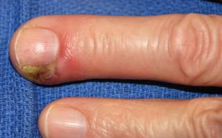 Лечение гноя на пальце. Антибиотики при панариции пальца руки. Антибиотики при панариции пальца