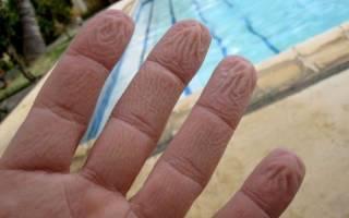 Почему сморщиваются пальцы от воды. Почему кожа морщится от воды