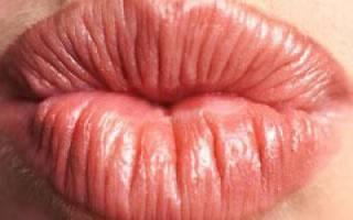 Шелушатся и трескаются губы, что делать? Трескаются губы