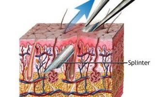 Как вытаскивать занозы? Как легко, быстро, без боли вытащить занозу из руки или ноги? Заноза: что делать и как вытащить народными средствами