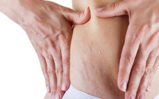 Могут ли появляться растяжки при похудении. Как избежать обвисания кожи и растяжек при похудении? Как избавиться в домашних условиях