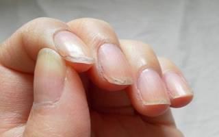 Как избавиться от слоения ногтей. Как остановить процесс расслоения ногтей и вернуть их красоту? Устранение патологии ногтевых пластин народными способами
