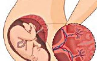 Преждевременное развитие плаценты что. В чем заключается правильное лечение этой патологии? Как диагностируют преждевременное созревание плаценты, что делают при ее обнаружении