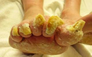 Как выглядит грибок ногтей. Симптомы и лечение грибка ногтей на ногах