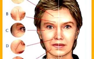 Как меняется лицо с возрастом у мужчин. Салонные процедуры против старения кожи. Прежде всего — сон