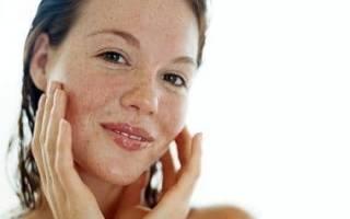 Пигментные пятна после родов на лице и теле: причины появления, способы устранения, профилактика. Как избавиться от пигментных пятен после родов