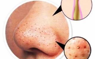 Как избавиться от черных точек на носу в домашних условиях. Черные точки (комедоны) на коже лица и тела. Как избавиться от черных точек в домашних условиях? Маски, скрабы. Какие бывают комедоны