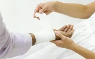 Аккумуляторная кислота попала на кожу, что делать? Химический ожог кожи: лечение в домашних условиях
