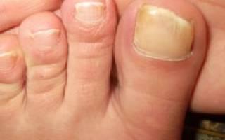 Как подстричь самой себе ногти. Какая форма ногтей у тебя на ногах? Пошаговая инструкция стрижки ногтей ножницами