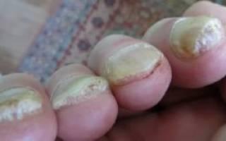 Домашние рецепты от грибка ногтей. Как и чем лечить запущенный грибок ногтей на ногах. Как снять ноготь в домашних условиях