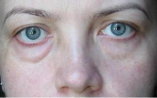 Почему отекает лицо и как быстро снять отек. Причины отеков на лице и лучшие способы как избавиться от них