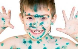 Чем можно отмыть зеленку с лица. Чем отмыть зеленку с рук: эффективные способы