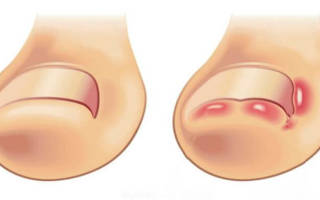 Как лечить вросший ноготь на большом пальце ноги в домашних условиях. Лечение вросшего ногтя у грудничка. Самое эффективное средство борьбы с вросшим ногтем
