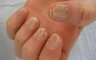 Атрофия ногтя и гиперторофия: причины и лечение. Срединная каналообразная форма. Распространенные виды деформаций